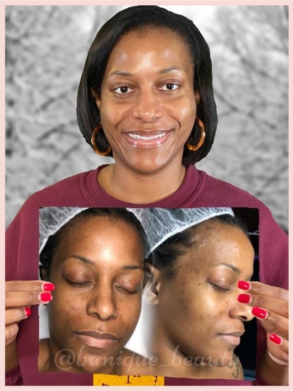 B-Unique Beauty Acne BootCamp