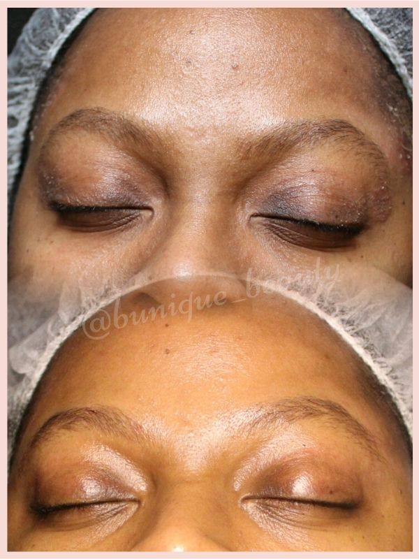 B-Unique Beauty Facial